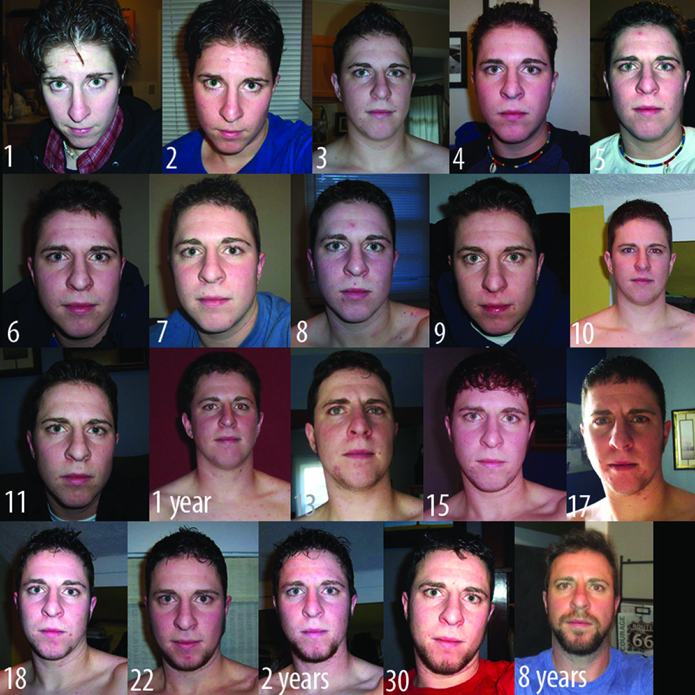 gone through from the use of testosterone cyponiate (hormone therapy
