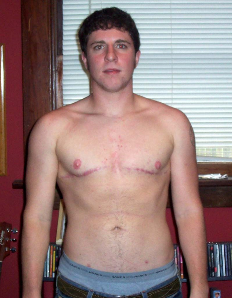 Trans Men and Hysterectomy
